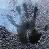 Žiemą – nušalimų pavojus: kaip nuo jų apsisaugoti ir ką daryti nušalus?
