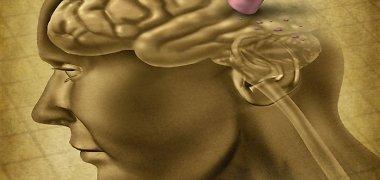 Smegenų mankšta: efektyvūs būdai atminčiai lavinti